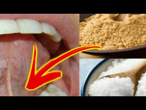 Just Put Salt Sugar Mixture Under Your Tongue Before You Go to Sleep and See What Happens!
