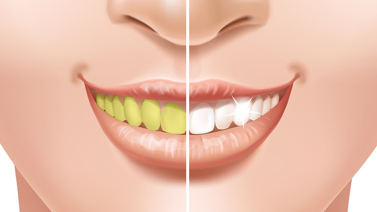 How To Whiten Teeth Instantly In Just 2 Minutes With This Natural