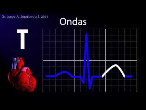 Electrocardiografía Básica (Parte 1/4)
