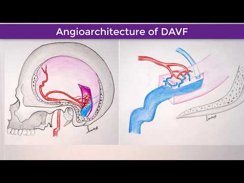 right-transverse-sigmoid-sinus-dural-arteriovenous-fistula