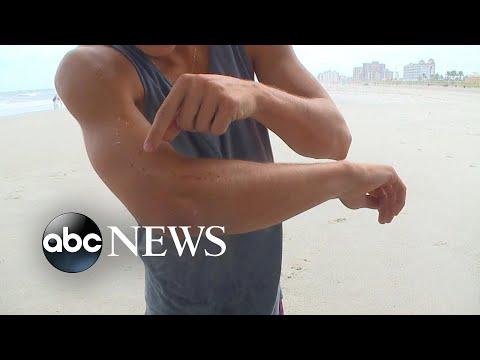 Lucyl Bee - ALERTA!!! Continuan los ataques de tiburones en las playas de Florida.