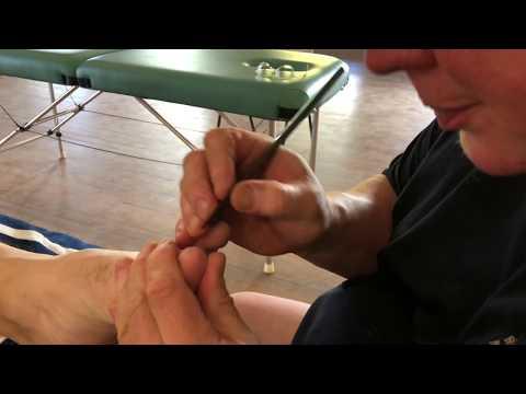 Deep Tissue Big Toe Massage. Foot massage. Raynor massage. Brandon working on Ed's big toe.