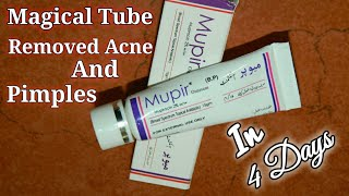 Download T Bact Ointment Used For Pimples Videos - Dcyoutube