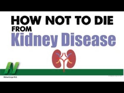 Anong Stage Ka ng KIDNEY Disease? Creatinine Ibaba, Tamang Pagkain - Payo ni Doc Willie Ong #555