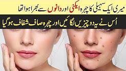 hqdefault - Acne Treatment Creams Review