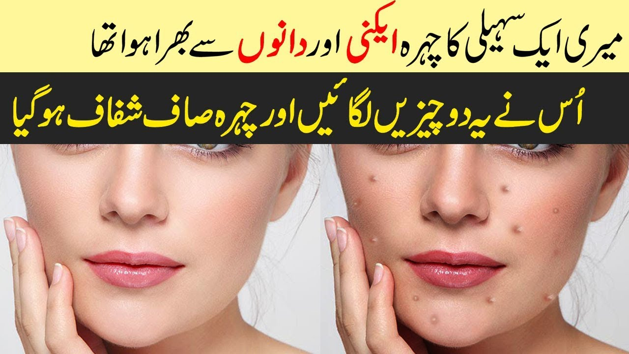 100 Results With 2 Amazing Acne Treatment Products Review Remove