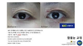 아이오유성형외과 : 함몰눈 교정 3 [쌍꺼풀 재수술 /…