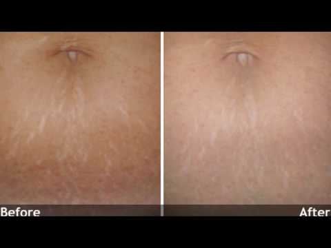 Mederma Before And After – Mederma Stretch  Marks Therapy