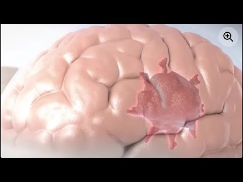 How To Improve Blood Circulation in Brain | Five Ways To Improve Blood Circulation To The Brain