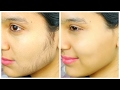 Remove Facial Hair PERMANENTLY - Ubtan Face Pack | Anaysa