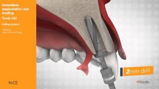 AlphaBio NICE имплант - Хирургический протокол(Купить продукцию компании АльфаБио http://www.all-dent.com.ua/collection/alphabio., 2015-05-22T13:55:55.000Z)