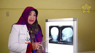 Pembacaan Foto Roentgen Kepala - dr. Indrita Iqbalawaty, Sp. Rad