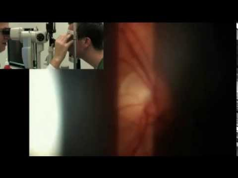 optic disc examination