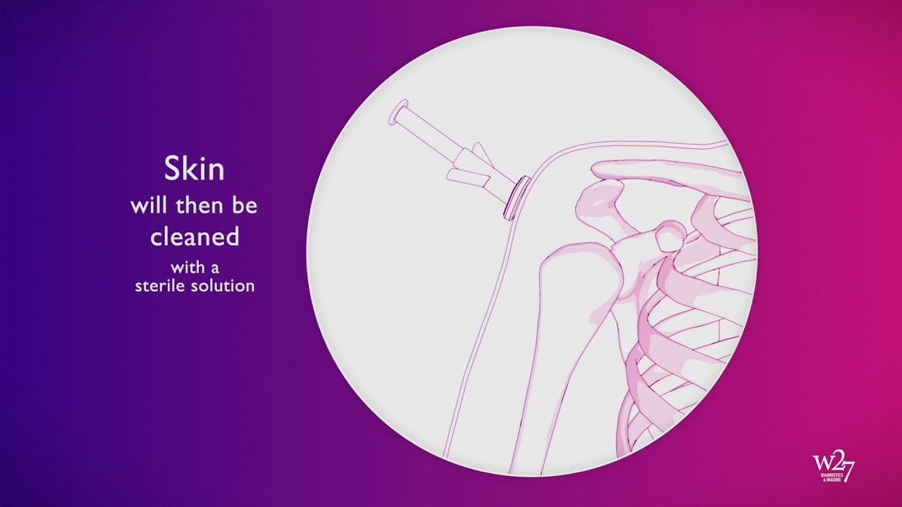 decompensarea artrozei articulației șoldului)