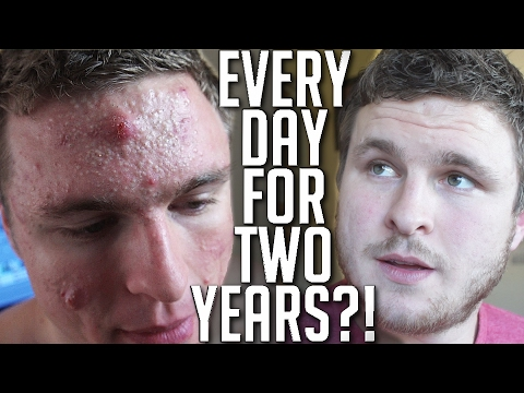 I Took Accutane Every Day For Almost 2 Years! (MY REVIEW)