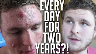 One of Brian Turner's most viewed videos: I Took Accutane Every Day For Almost 2 Years! (MY REVIEW)