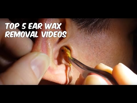 Top 5 Ear Wax Removal Videos | VERY SATISFYING!!!