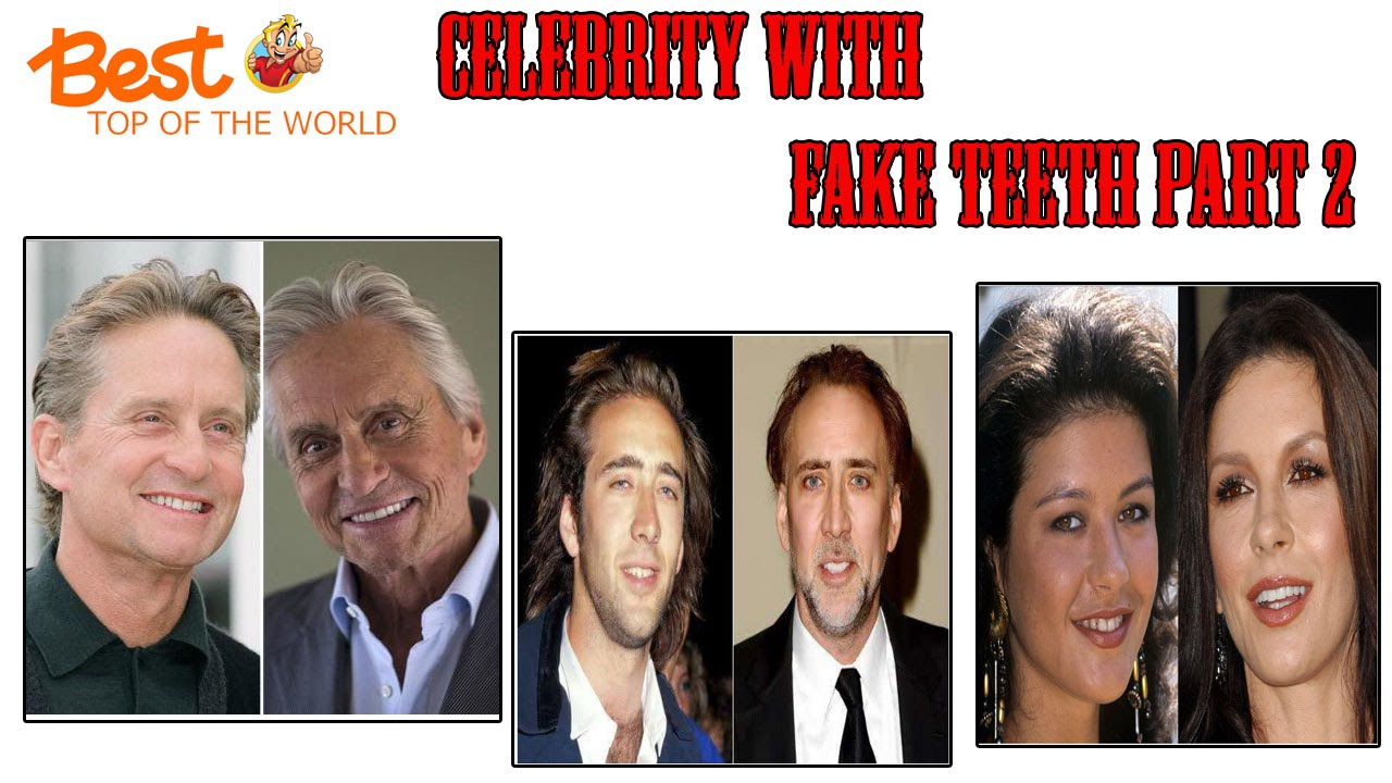 best top 10 celebrities with fake teeth part 2 youtube