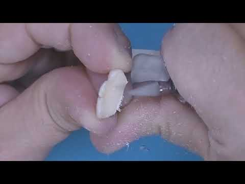 Technique: Invisible Retainer with Pontic