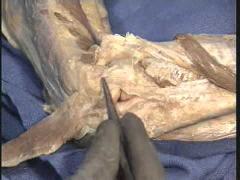 Elbow Medial and Lateral Ligament Dissection - ORV - William Beach ...