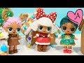 Muñecas LOL bebés *Serie Navideña* con ULTRA RARA - Juguetes con Andre