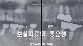 [조앤윤치과 3-7-4] 상악동거상술-임플란트-교합-교…