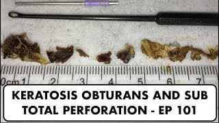 EAR WAX REMOVAL KERATOSIS OBTURANS AND SUB TOTAL PERFORATION - EP 101
