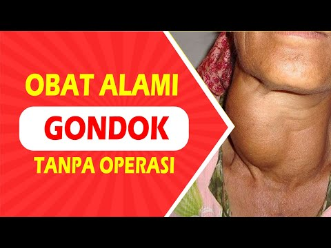 Obat Gondok Alami TANPA Operasi | Testimoni Nyata Propolis SM