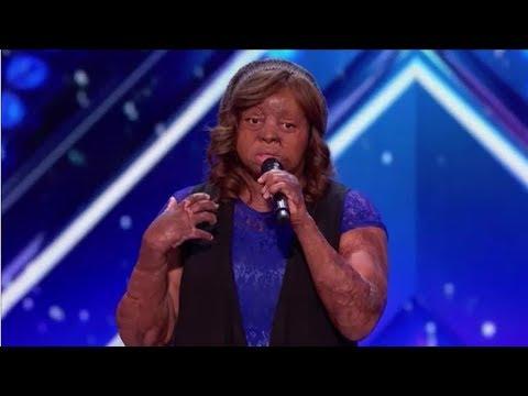 Meet Kechi: Plane-crash Survivor Fights Back Through Singing | Auditions |  America's Got Talent 2017