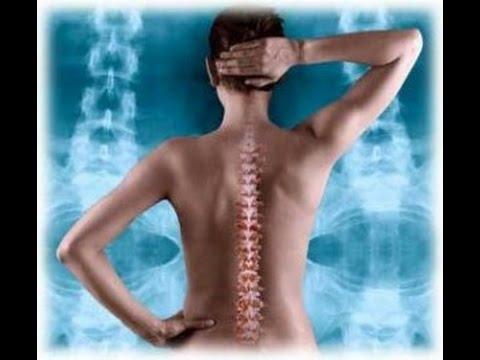Остеохондроз поясничного отдела позвоночника. Лечение