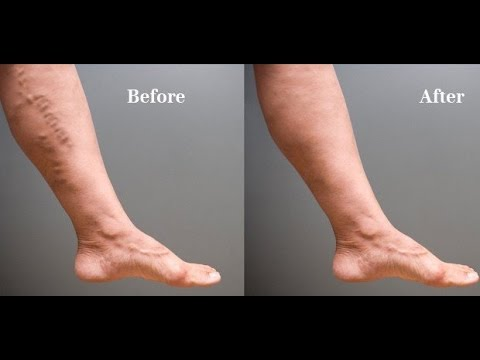 Varicose Veins Natural Treatment | Varicose Veins Home Treatment Program