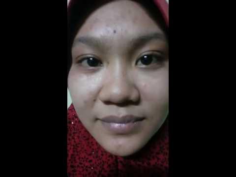 Testimoni alrazi botox cream 5