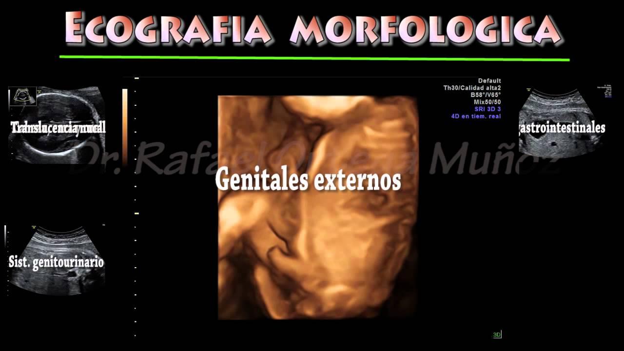 Ecografia de las 20 semanas Clinica ginecologica Dr.Rafael Ortega ...