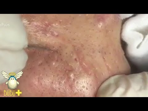 acne nose Adult