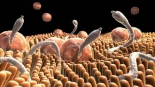 Как узнать есть ли глисты у человека? Как избавиться от глистов?