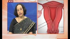 Polycystic ovarian Disease : Prevention and Treatment
