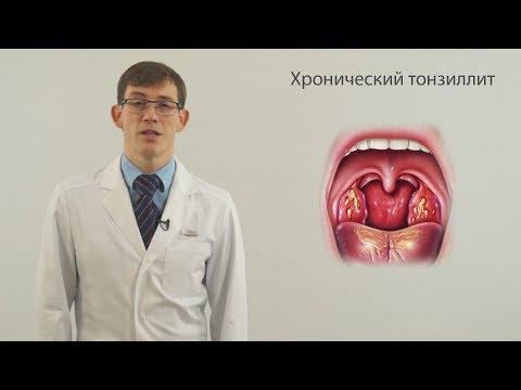 Болит горло во рту неприятный привкус