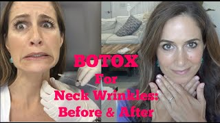 BOTOX For Your Neck!?! Before & After!