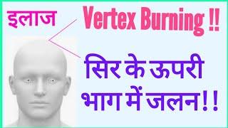 #Burning Of Vertex#Burning of Top of Head#खोपड़ी के ऊपरी भाग में जलन का कारण और इलाज#सिर में जलन screenshot 2