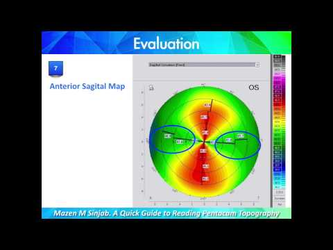 A Quick Guide to Reading Corneal Topography. Part 1