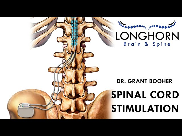 Longhorn Brain and Spine - Spinal Cord Stimulation