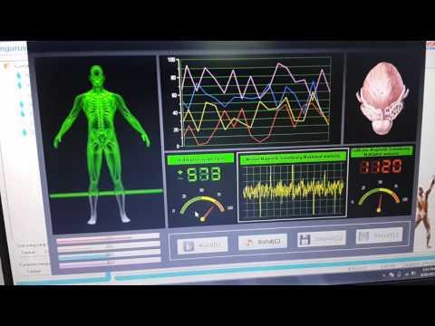 Alat Pengimbas 34 Jenis Penyakit - Quantum Magnetic