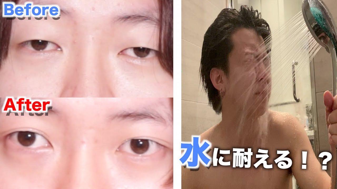 だけ 小さい 片目 左右の目の大きさや形が違う1(うまれつきの場合)