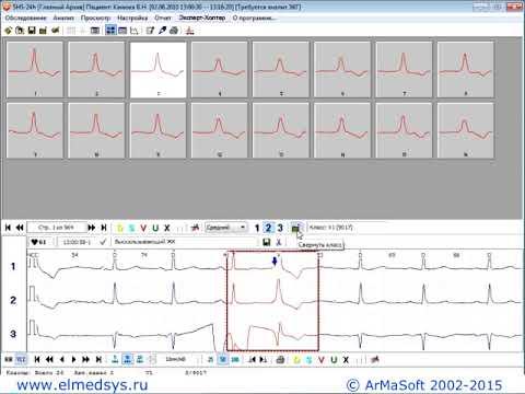 Холтеровское мониторирование ЭКГ, расшифровка суточного мониторинга по Холтеру
