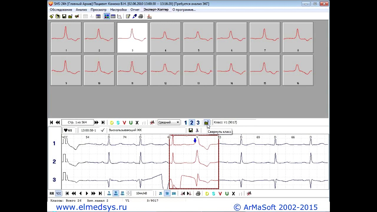 An electrocardiogram and a holter monitor (a device that records the heart rhythm for 24 hours) may be necessary to determine the cause of your