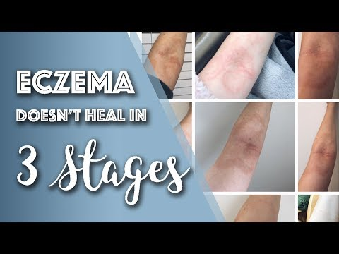 How Eczema ACTUALLY Heals (You Might be Surprised) // Michelle Mills