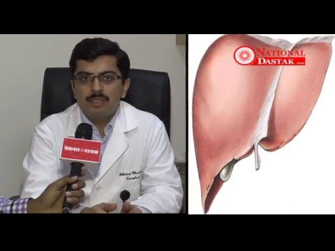 Story about Liver Cirrhosis, How to prevent your Liver