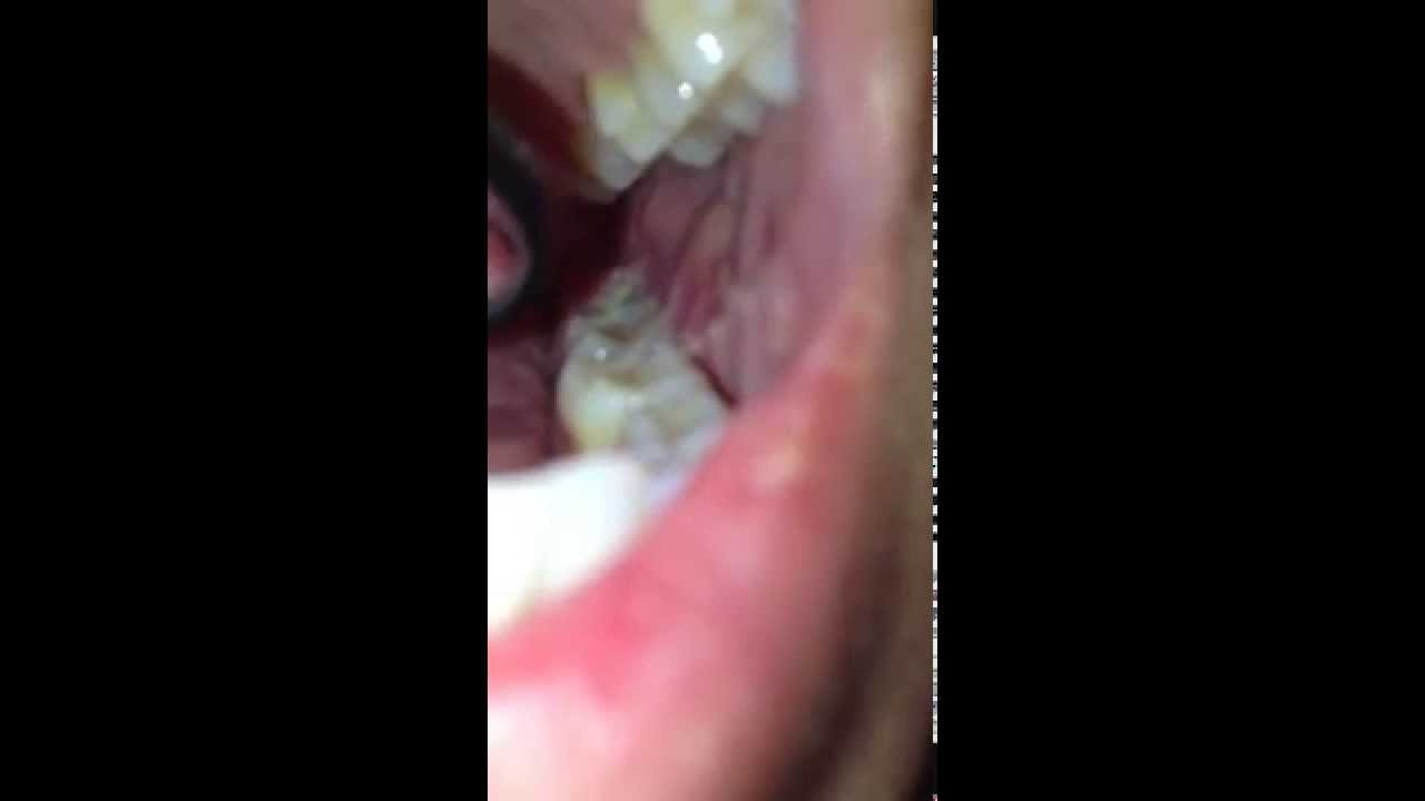 Wisdom Tooth Infection Abcess Draining Pus Part 2 Youtube