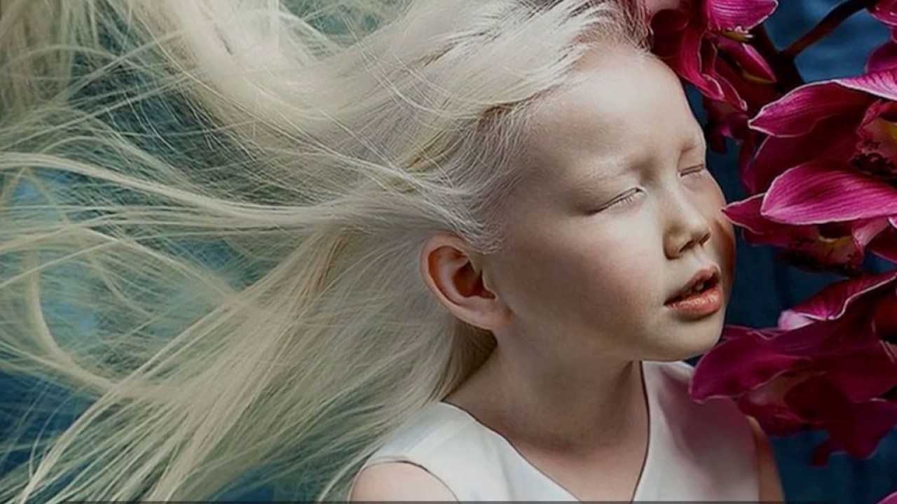 Meet Nariyana 8 Year Old Albino Snow White Conquering Our -6811