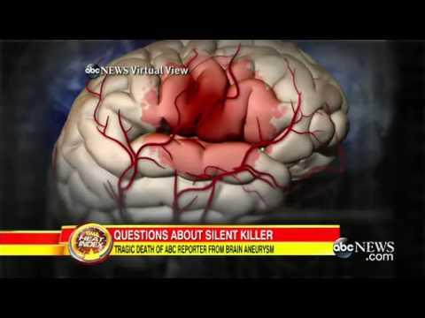 30,000 Die Yearly From Brain Aneurysm Rupture